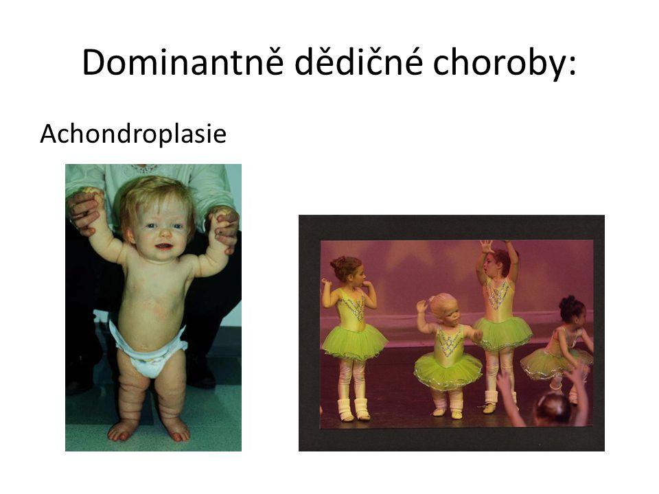Dominantně dědičné choroby: