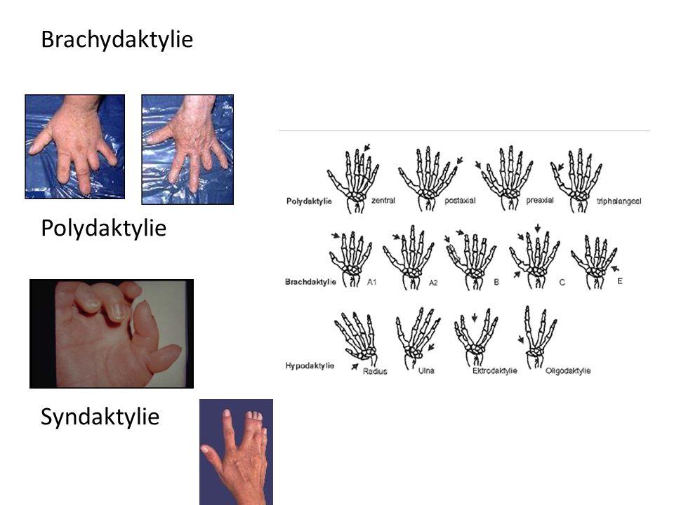 Brachydaktylie Polydaktylie Syndaktylie