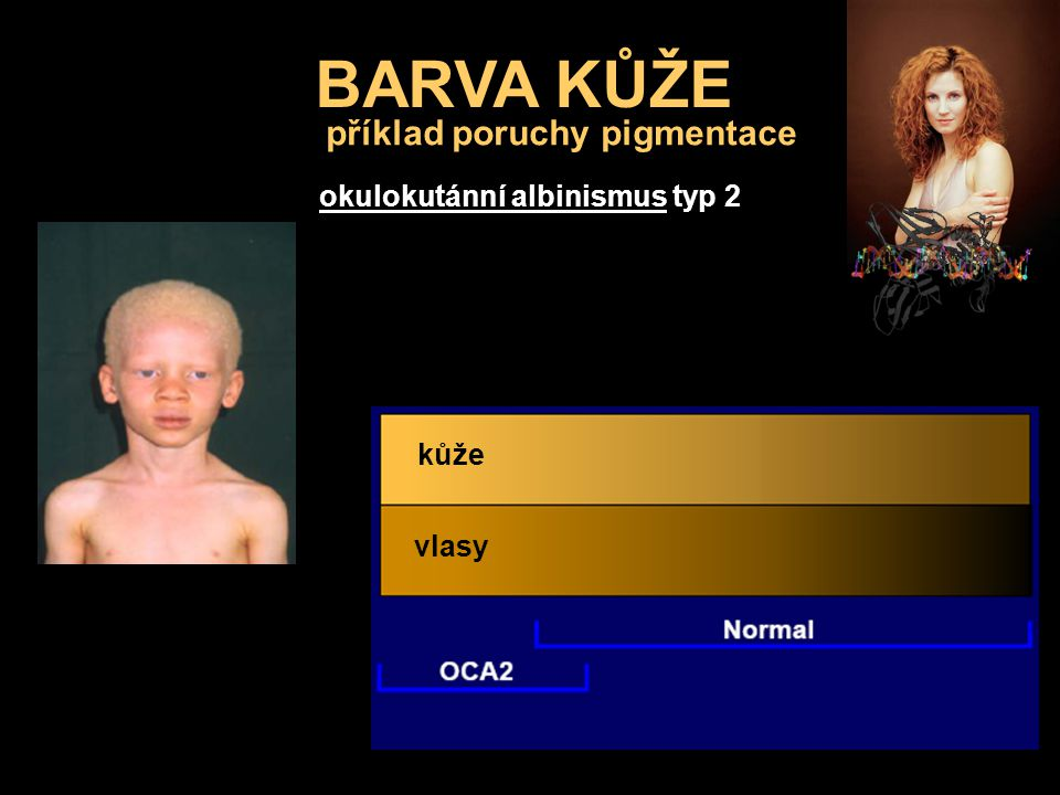příklad poruchy pigmentace okulokutánní albinismus typ 2