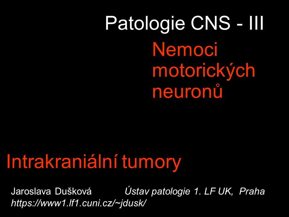 Intrakraniální tumory