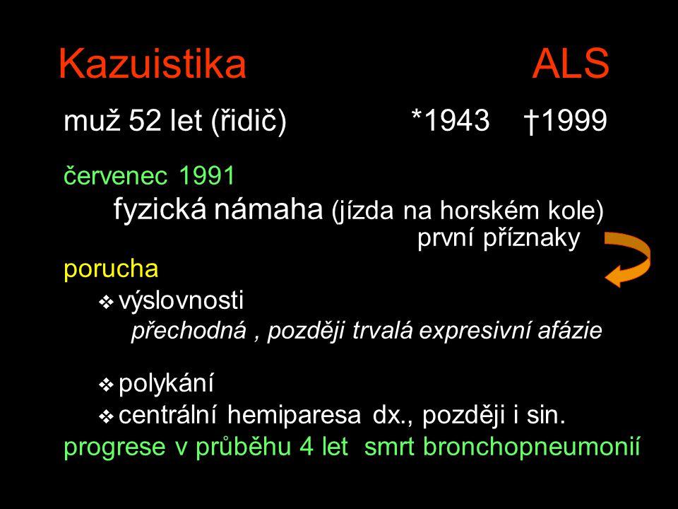Kazuistika ALS muž 52 let (řidič) *1943 †1999