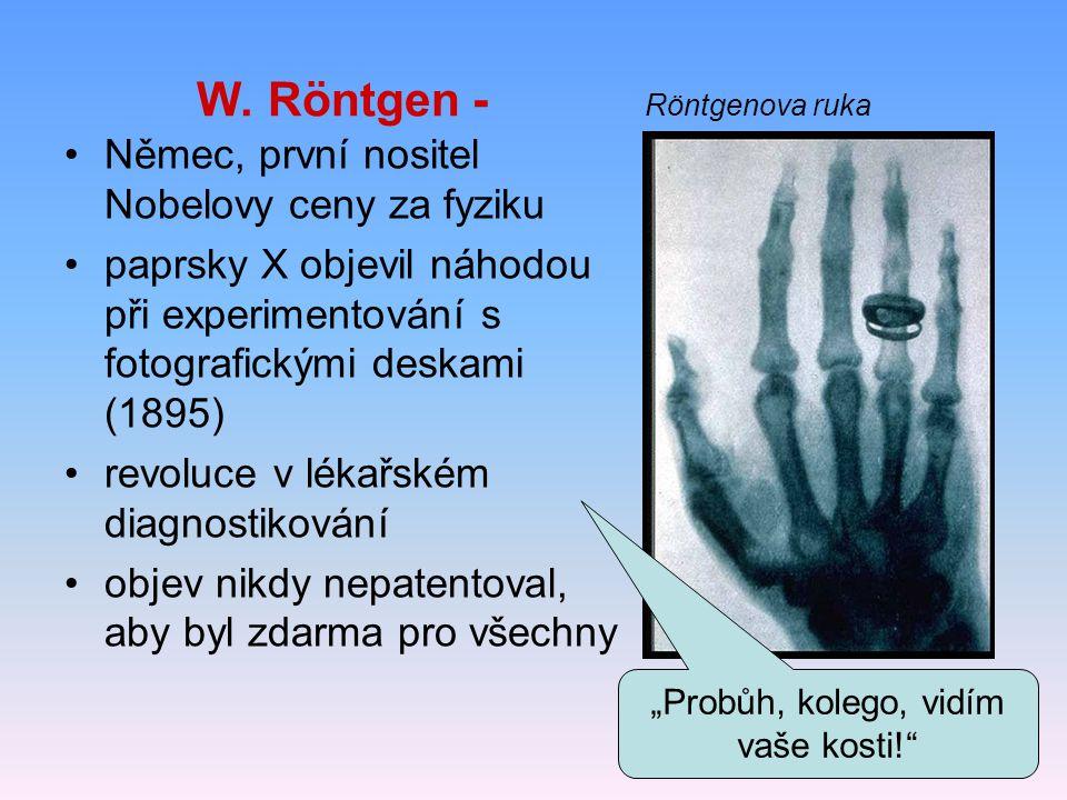 W. Röntgen - Röntgenova ruka