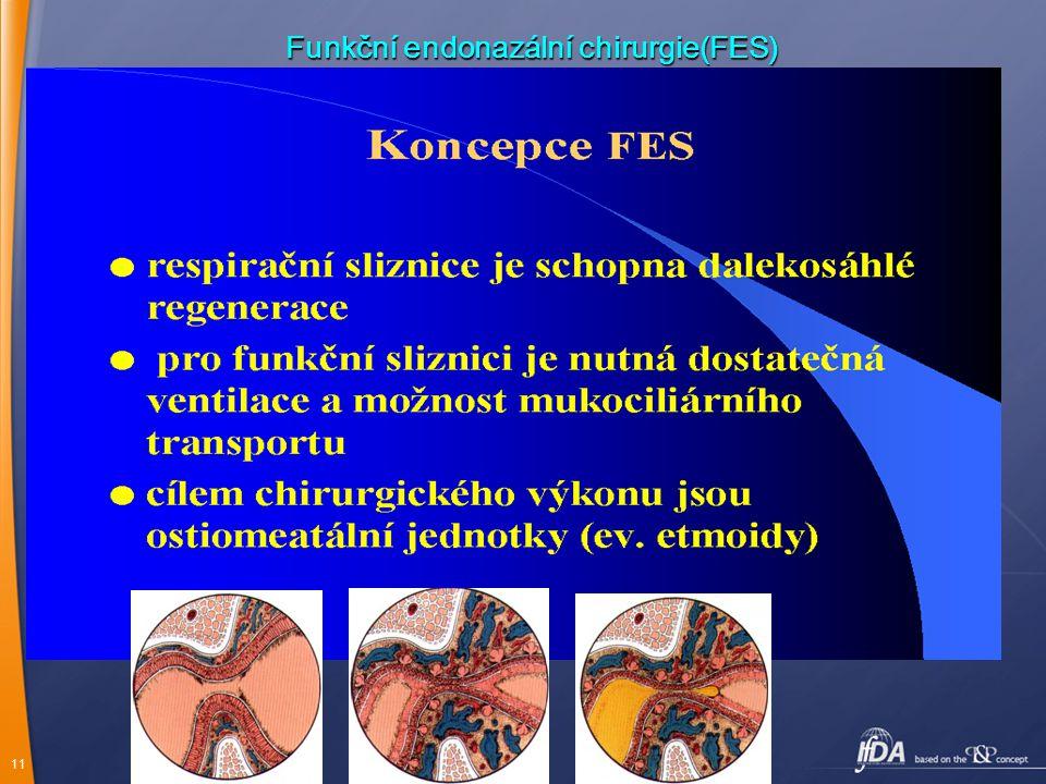 Funkční endonazální chirurgie(FES)