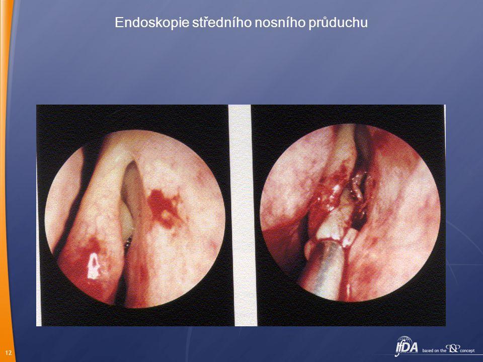 Endoskopie středního nosního průduchu