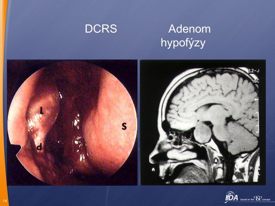DCRS Adenom hypofýzy