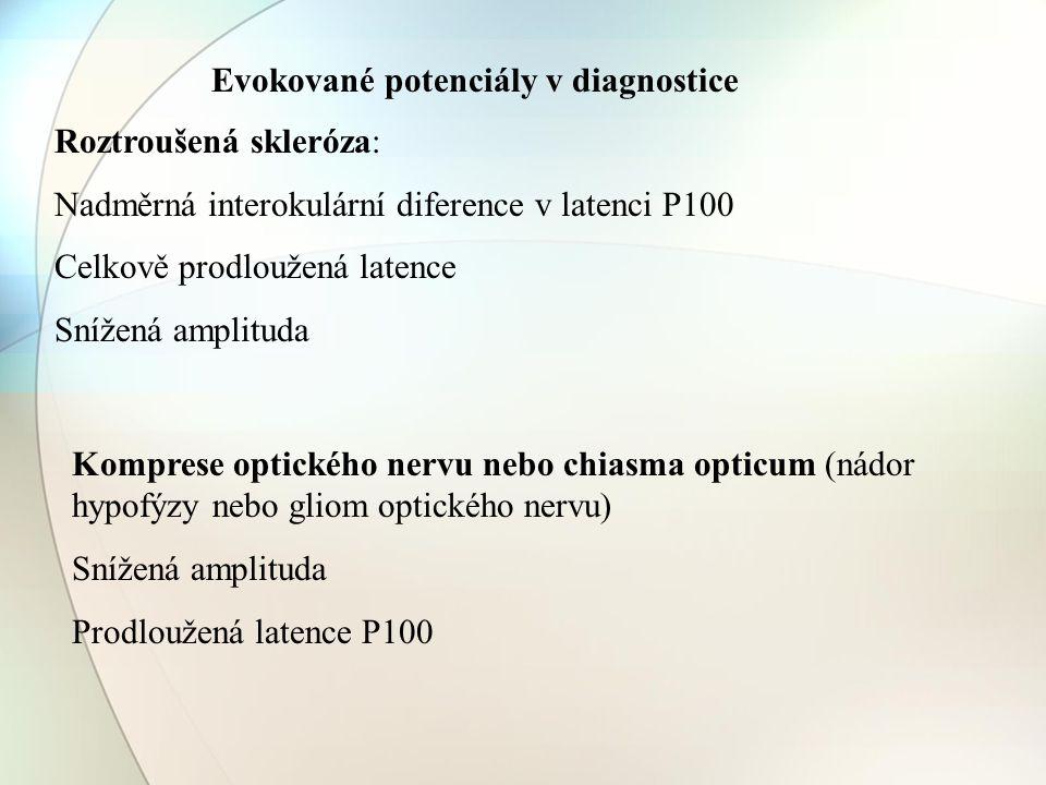 Evokované potenciály v diagnostice