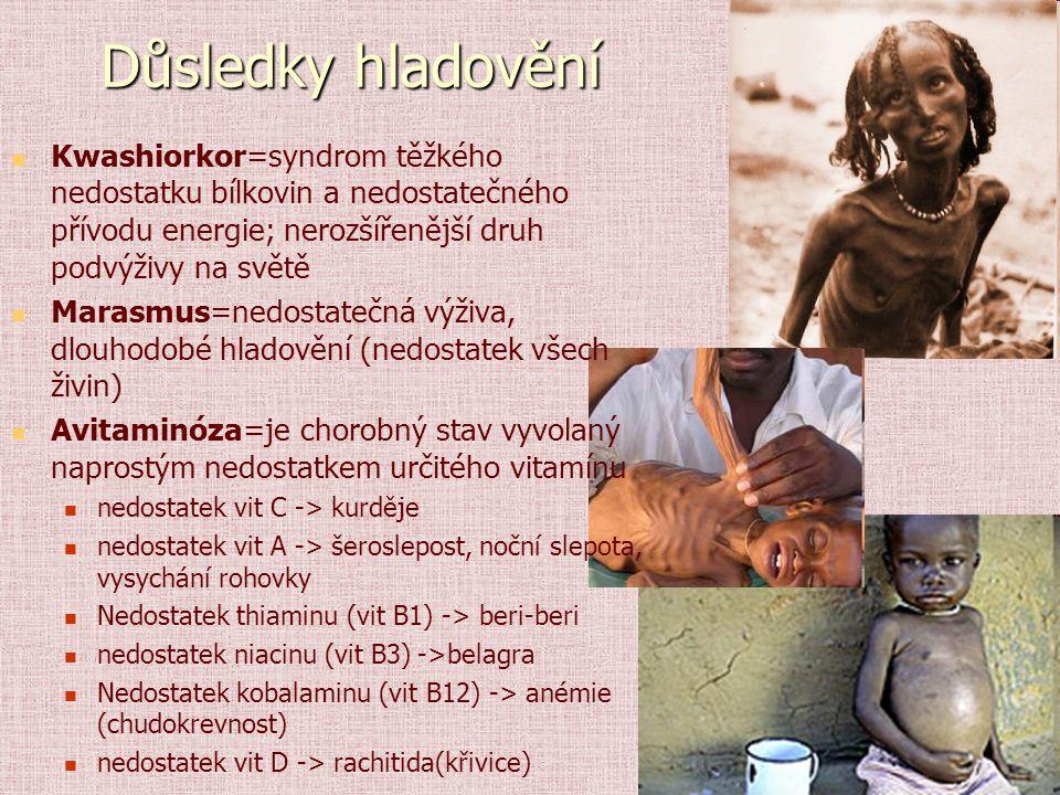Důsledky hladovění Kwashiorkor=syndrom těžkého nedostatku bílkovin a nedostatečného přívodu energie; nerozšířenější druh podvýživy na světě.