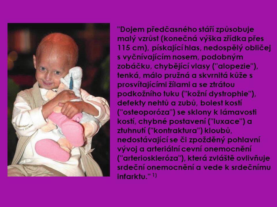 Dojem předčasného stáří způsobuje malý vzrůst (konečná výška zřídka přes 115 cm), pískající hlas, nedospělý obličej s vyčnívajícím nosem, podobným zobáčku, chybějící vlasy ( alopezie ), tenká, málo pružná a skvrnitá kůže s prosvítajícími žílami a se ztrátou podkožního tuku ( kožní dystrophie ), defekty nehtů a zubů, bolest kostí ( osteoporóza ) se sklony k lámavosti kostí, chybné postavení ( luxace ) a ztuhnutí ( kontraktura ) kloubů, nedostávající se či zpožděný pohlavní vývoj a arteriální cevní onemocnění ( arterioskleróza ), která zvláště ovlivňuje srdeční onemocnění a vede k srdečnímu infarktu. 1)