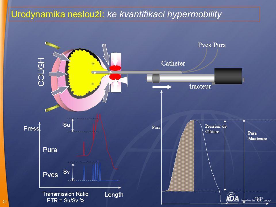 Urodynamika neslouží: ke kvantifikaci hypermobility