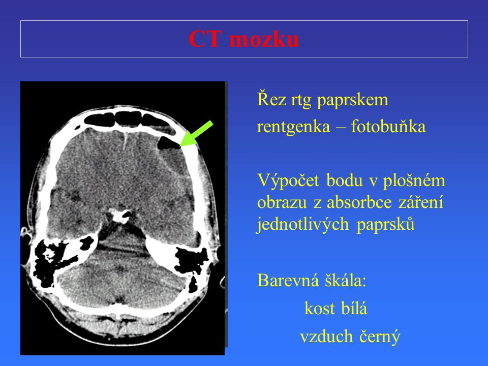 CT mozku Řez rtg paprskem rentgenka – fotobuňka