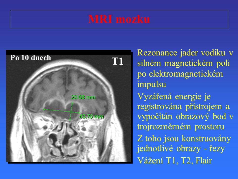MRI mozku Rezonance jader vodíku v silném magnetickém poli po elektromagnetickém impulsu.