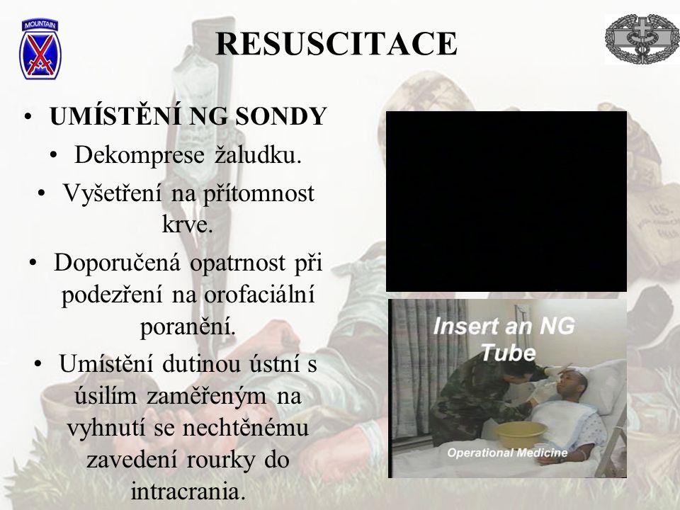 RESUSCITACE UMÍSTĚNÍ NG SONDY Dekomprese žaludku.
