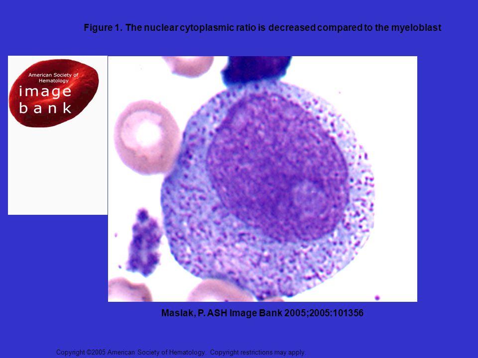 Maslak, P. ASH Image Bank 2005;2005:101356
