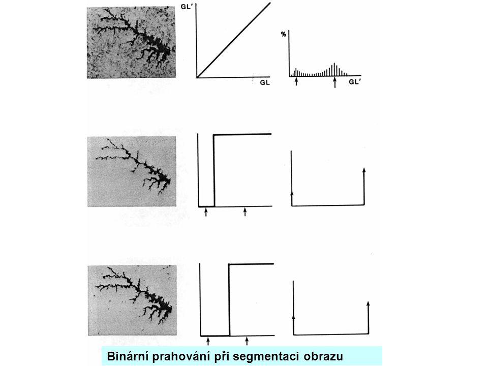 Binární prahování při segmentaci obrazu