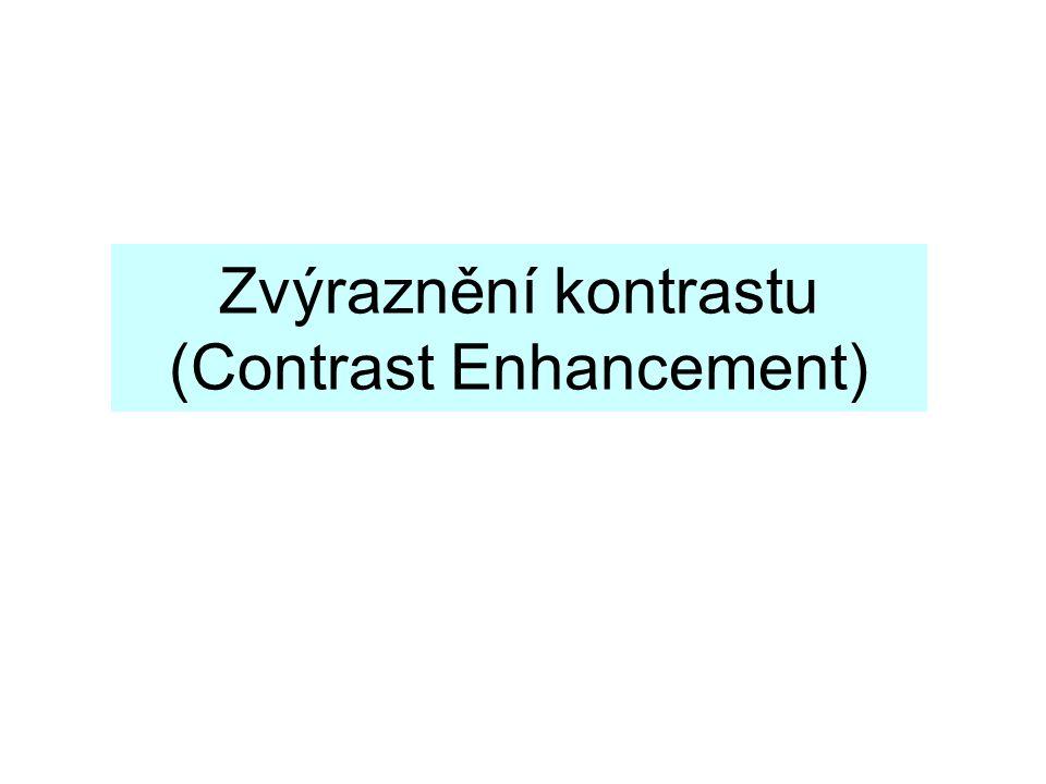 Zvýraznění kontrastu (Contrast Enhancement)