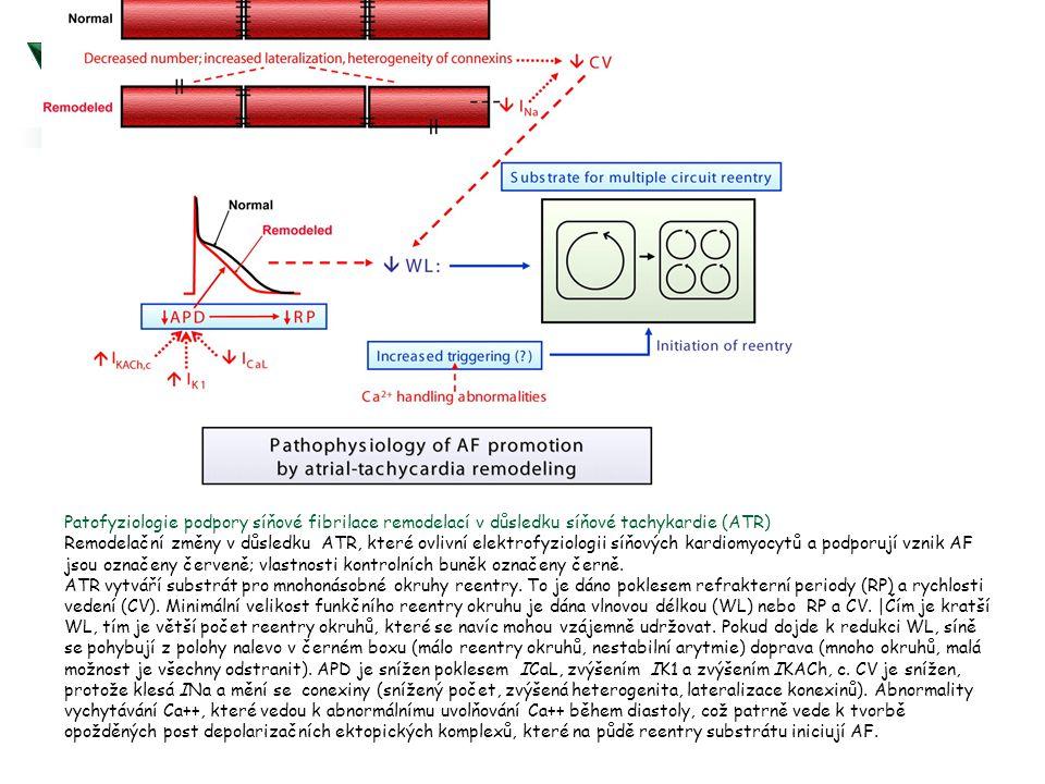 Patofyziologie podpory síňové fibrilace remodelací v důsledku síňové tachykardie (ATR)