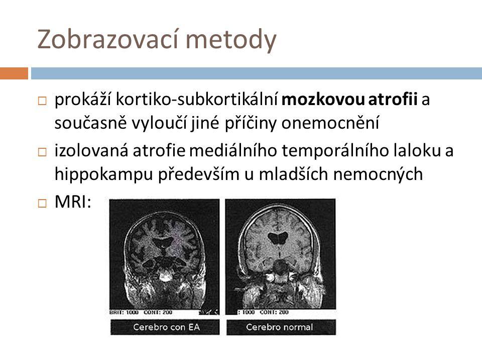 Zobrazovací metody prokáží kortiko-subkortikální mozkovou atrofii a současně vyloučí jiné příčiny onemocnění