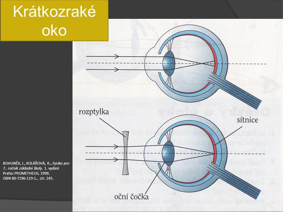 Krátkozraké oko BOHUNĚK, J., KOLÁŘOVÁ, R., Fyzika pro 7.. ročník základní školy. 1. vydání Praha: PROMETHEUS, 1998.