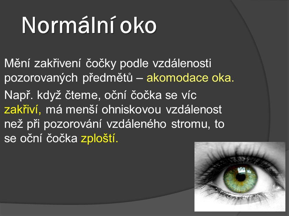Normální oko Mění zakřivení čočky podle vzdálenosti pozorovaných předmětů – akomodace oka.