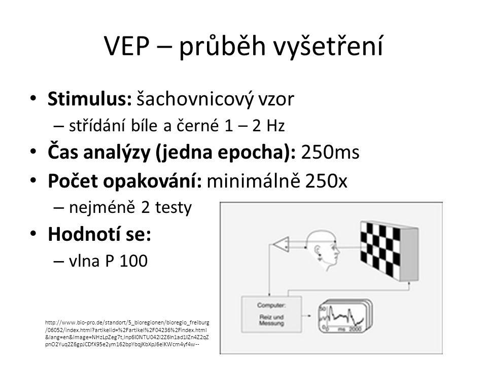 VEP – průběh vyšetření Stimulus: šachovnicový vzor