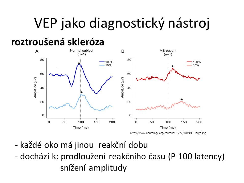 VEP jako diagnostický nástroj