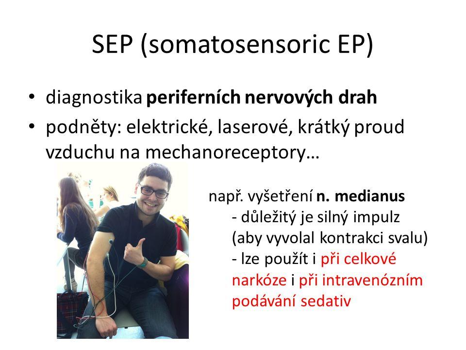 SEP (somatosensoric EP)