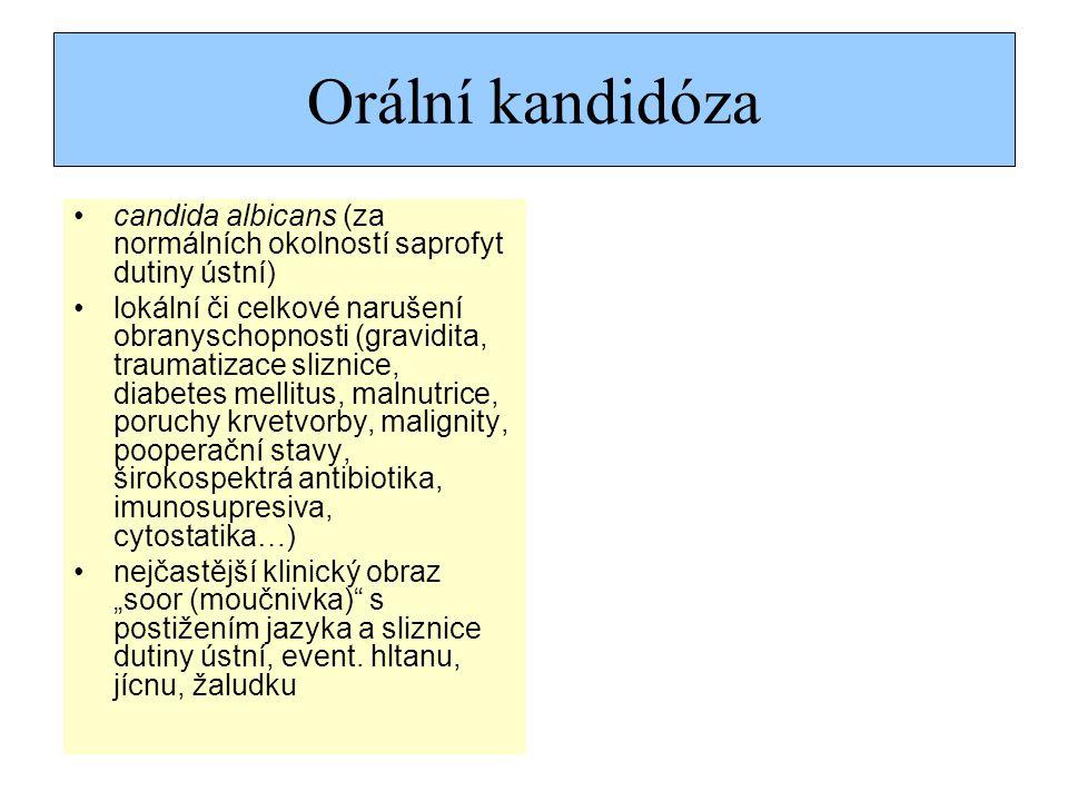Orální kandidóza candida albicans (za normálních okolností saprofyt dutiny ústní)