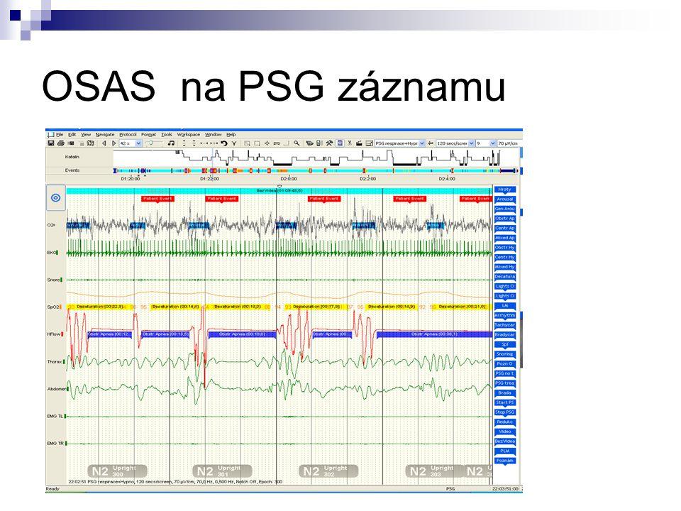 OSAS na PSG záznamu