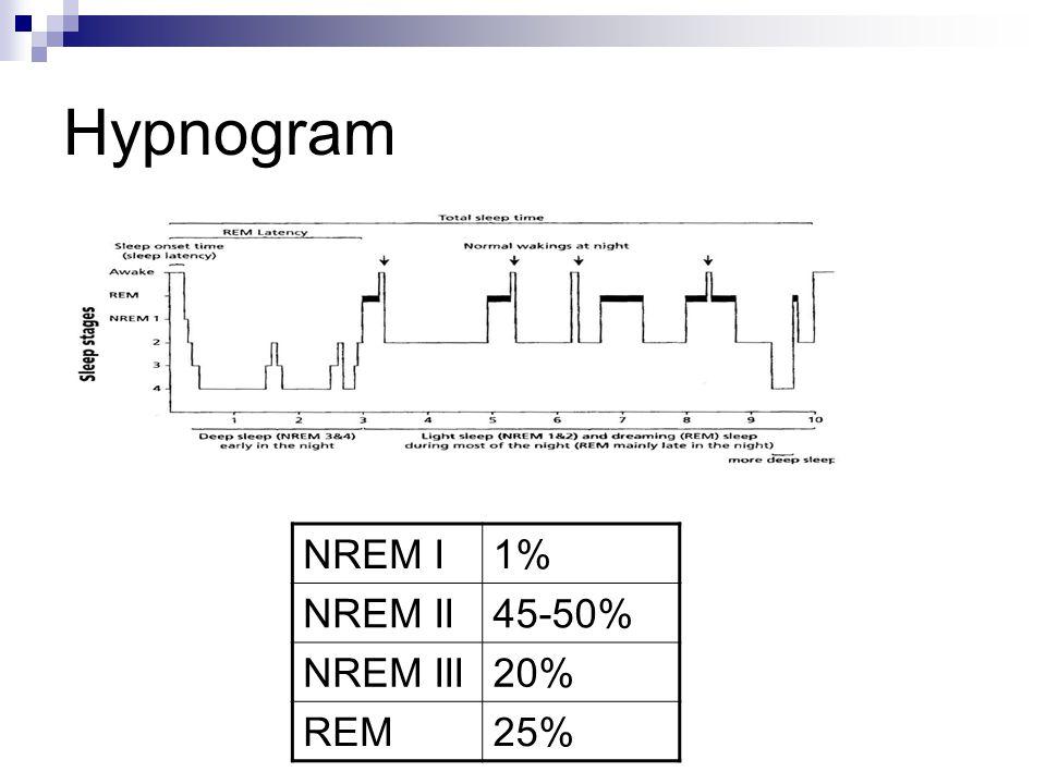 Hypnogram NREM I 1% NREM II 45-50% NREM III 20% REM 25%