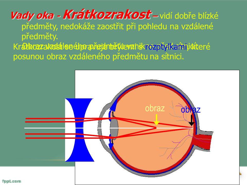 Vady oka - Krátkozrakost – vidí dobře blízké předměty, nedokáže zaostřit při pohledu na vzdálené předměty.