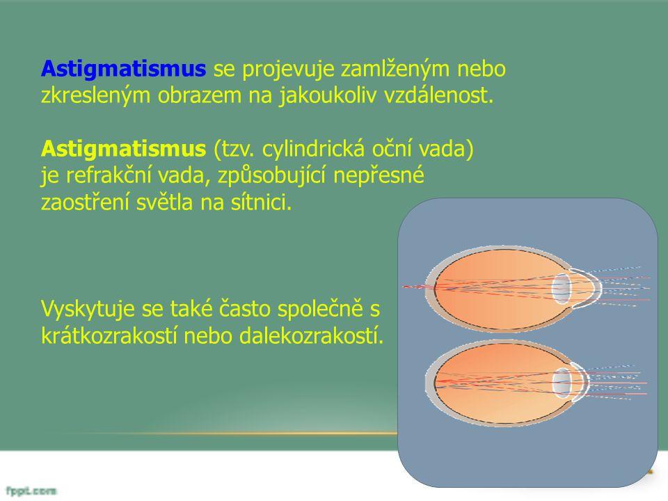 Astigmatismus se projevuje zamlženým nebo zkresleným obrazem na jakoukoliv vzdálenost.
