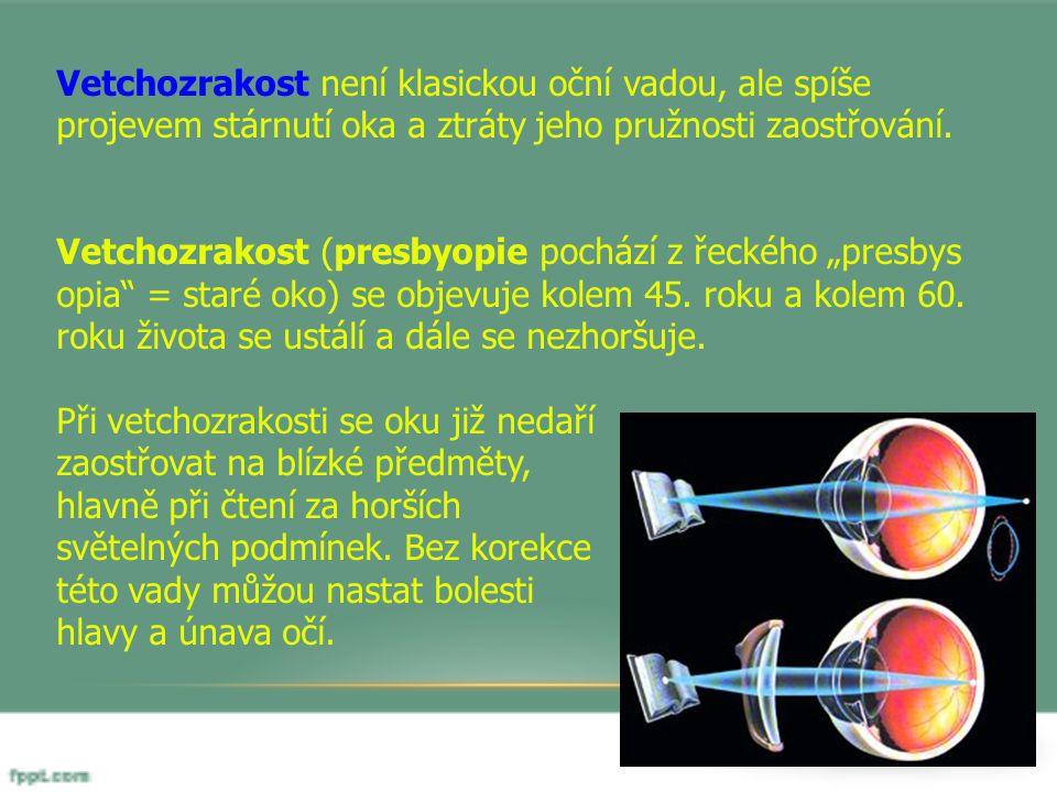 Vetchozrakost není klasickou oční vadou, ale spíše projevem stárnutí oka a ztráty jeho pružnosti zaostřování.
