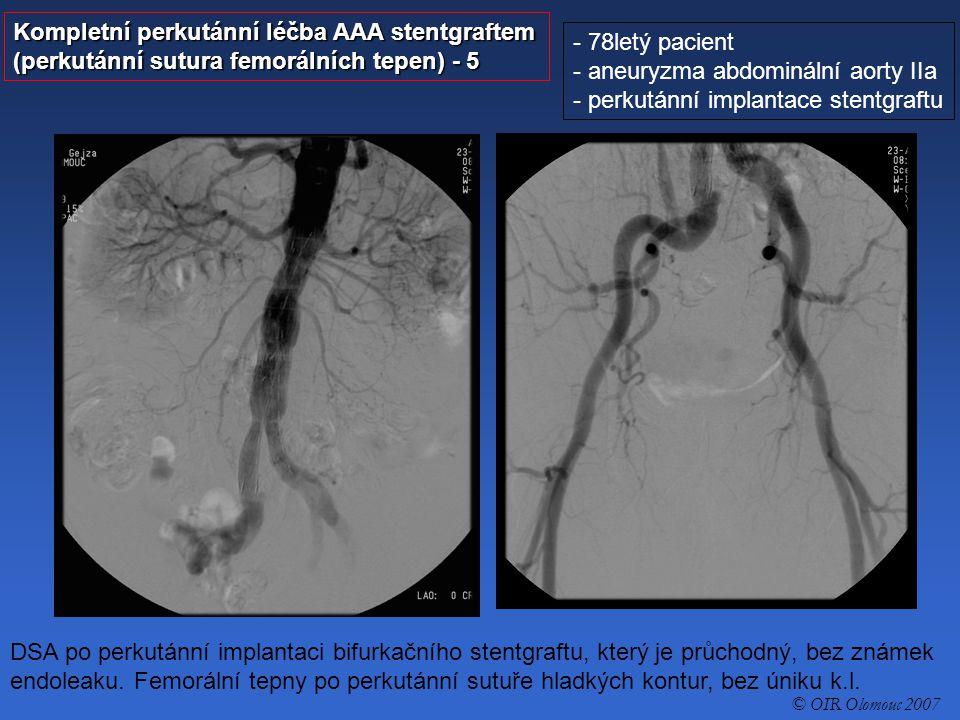 Kompletní perkutánní léčba AAA stentgraftem