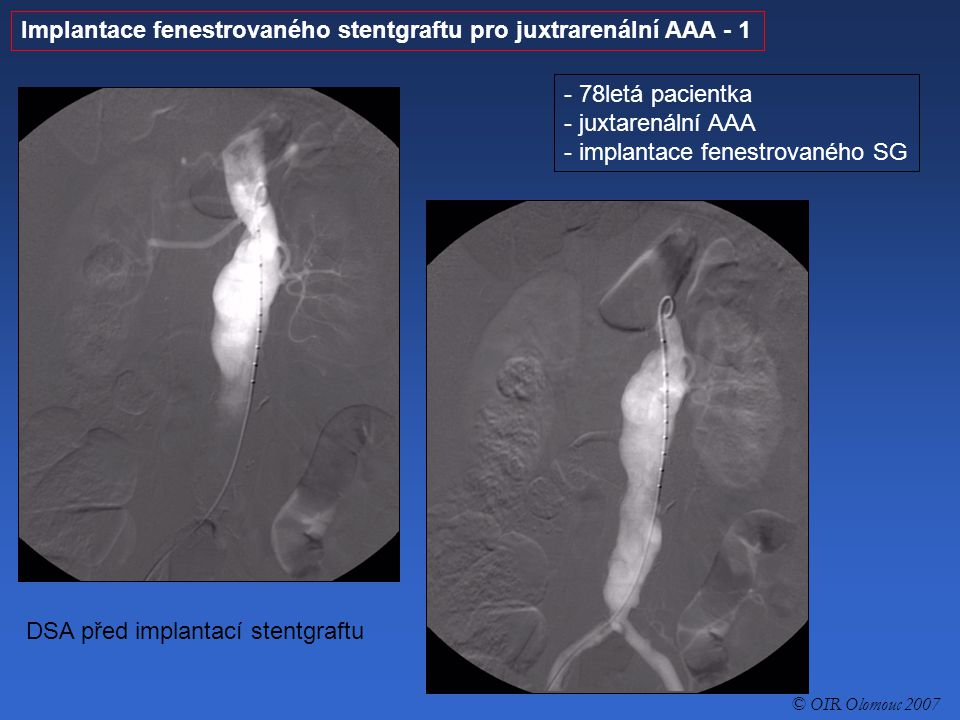 Implantace fenestrovaného stentgraftu pro juxtrarenální AAA - 1