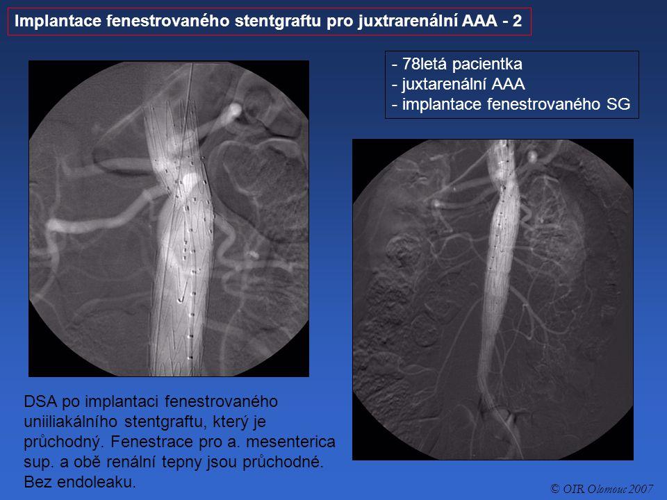 Implantace fenestrovaného stentgraftu pro juxtrarenální AAA - 2