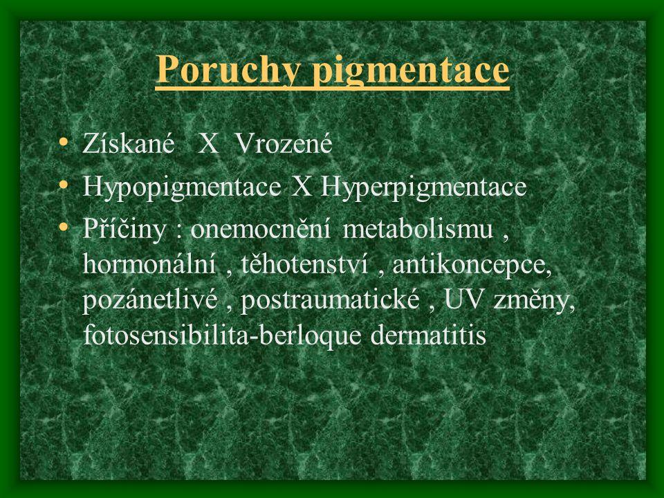 Poruchy pigmentace Získané X Vrozené Hypopigmentace X Hyperpigmentace