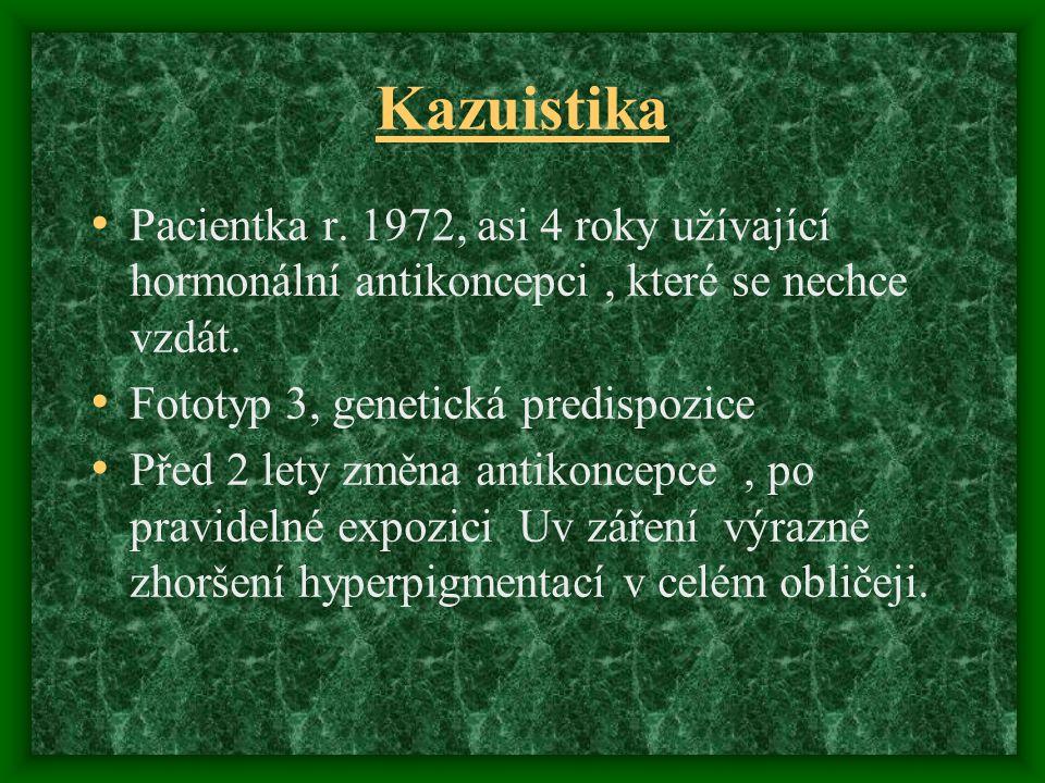 Kazuistika Pacientka r. 1972, asi 4 roky užívající hormonální antikoncepci , které se nechce vzdát.