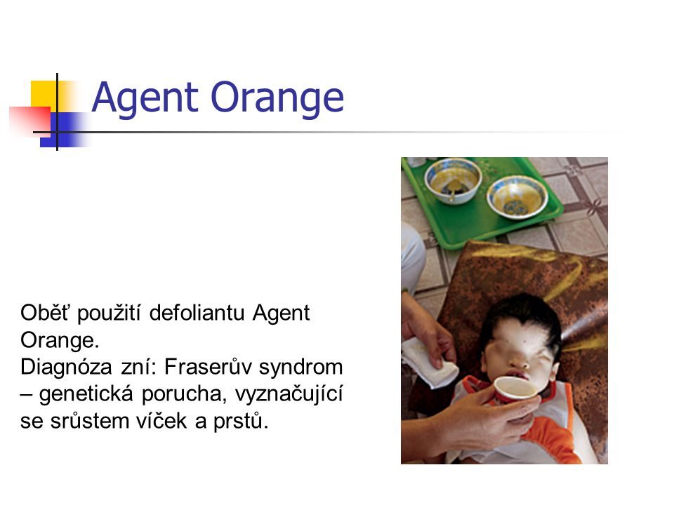 Agent Orange Oběť použití defoliantu Agent Orange.