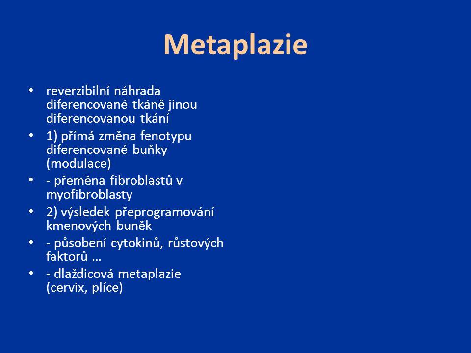 Metaplazie reverzibilní náhrada diferencované tkáně jinou diferencovanou tkání. 1) přímá změna fenotypu diferencované buňky (modulace)