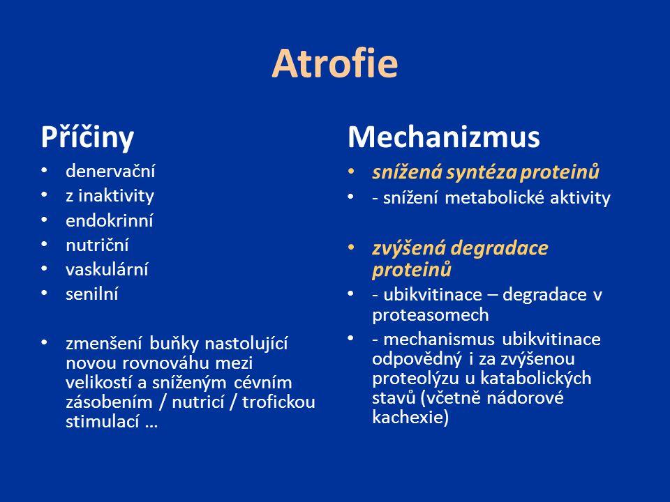 Atrofie Příčiny Mechanizmus snížená syntéza proteinů