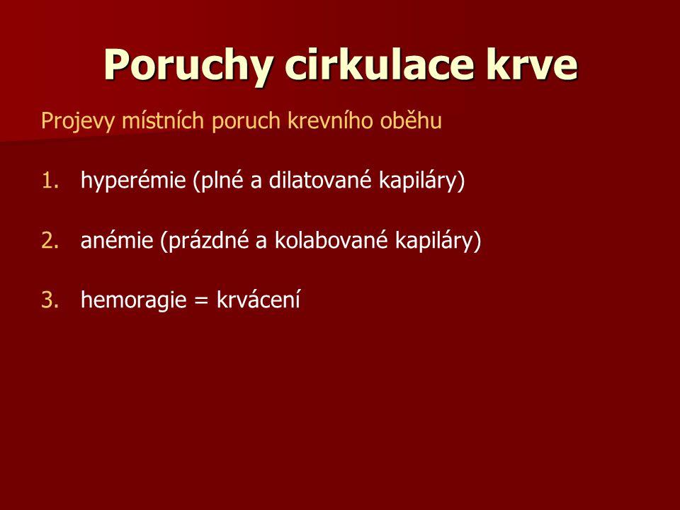 Poruchy cirkulace krve