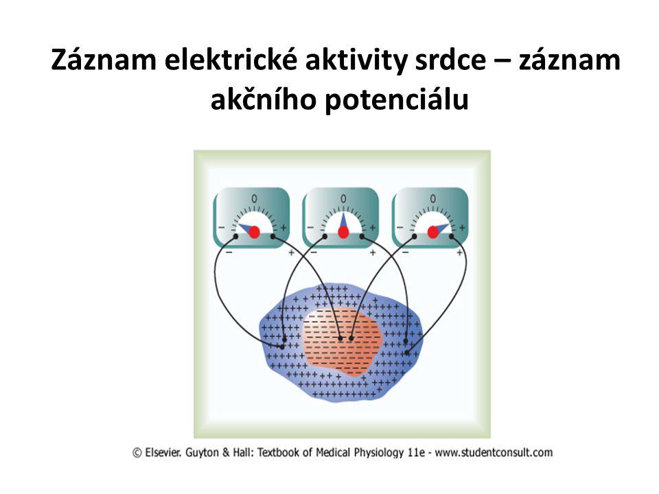 Záznam elektrické aktivity srdce – záznam