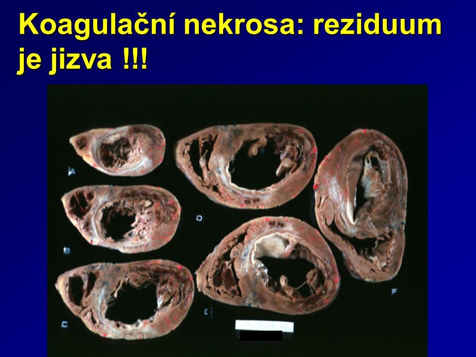 Koagulační nekrosa: reziduum je jizva !!!