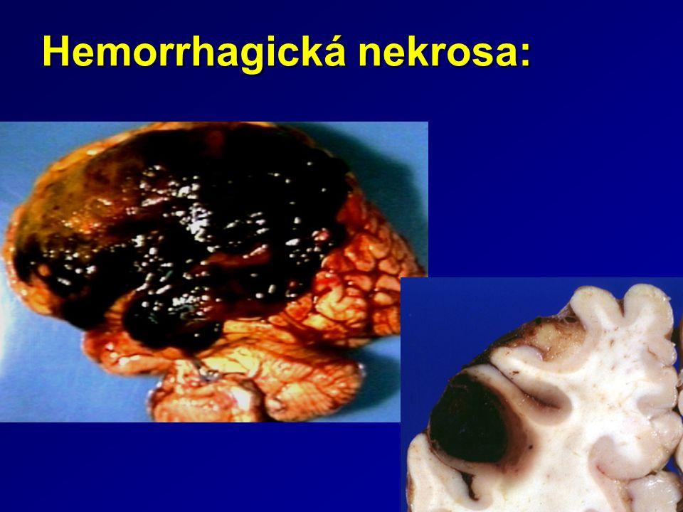 Hemorrhagická nekrosa: