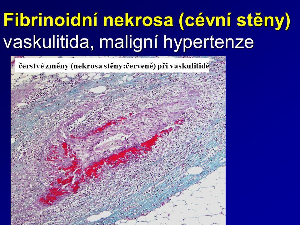 Fibrinoidní nekrosa (cévní stěny) vaskulitida, maligní hypertenze