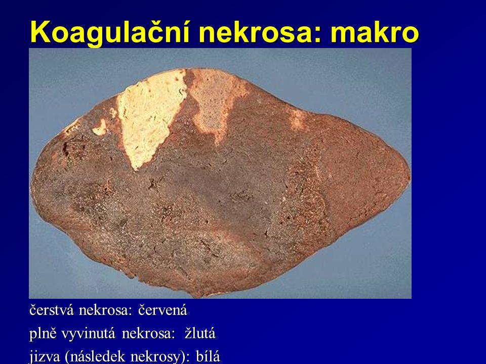 Koagulační nekrosa: makro