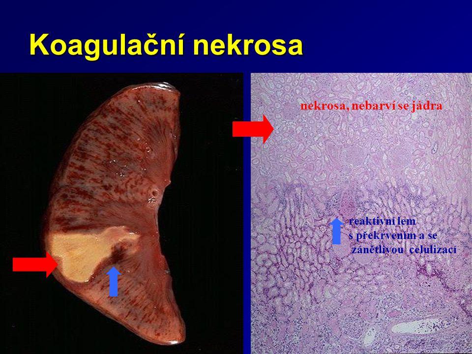 Koagulační nekrosa nekrosa, nebarví se jádra reaktivní lem