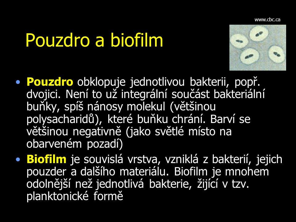 www.cbc.ca Pouzdro a biofilm.