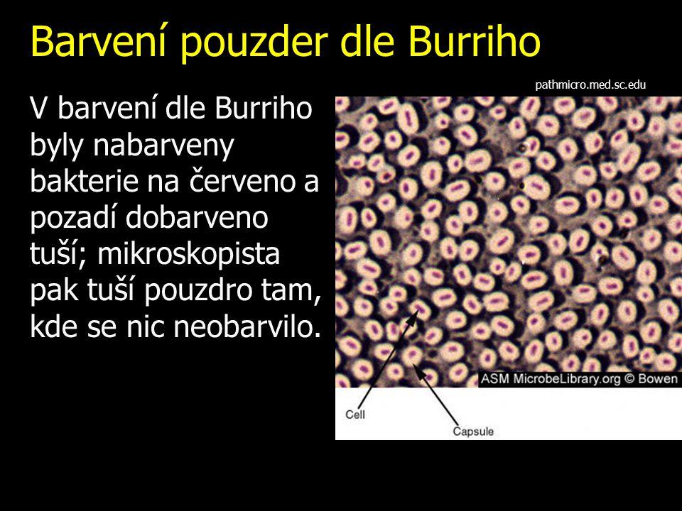 Barvení pouzder dle Burriho