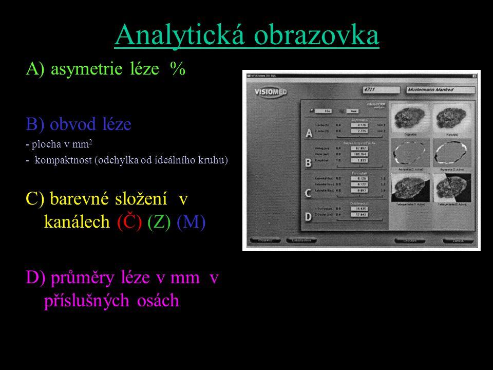 Analytická obrazovka A) asymetrie léze % B) obvod léze